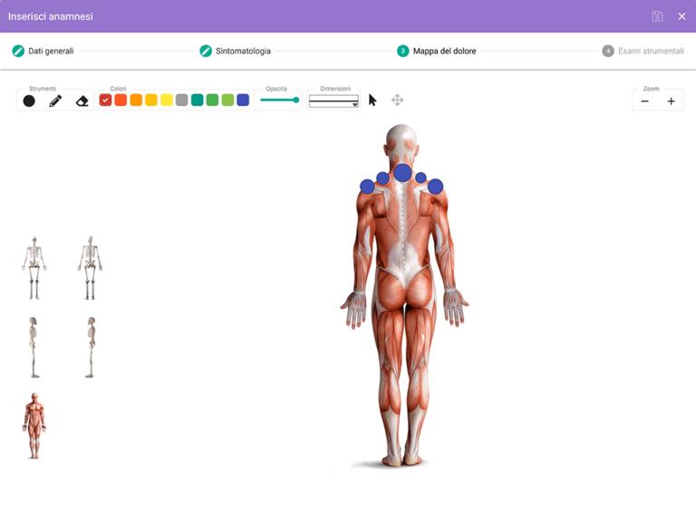 mappa del dolore con body charts interattive